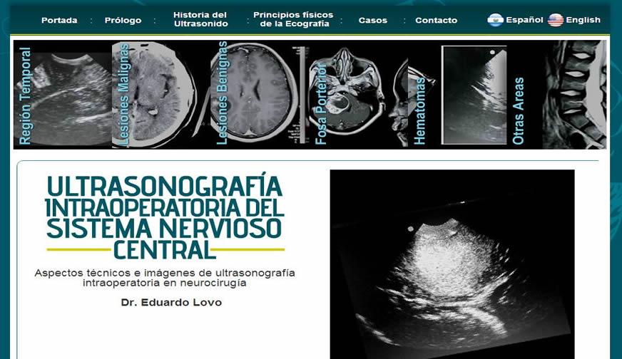 Ultra Cerebro